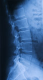 X ray of pars lumbalis lateral Royalty Free Stock Image