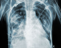 X-ray of patient after cardiac surgery Royalty Free Stock Photos
