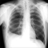 X-ray the patient with the disease of pleurisy. The inflammation around the lungs. Royalty Free Stock Image