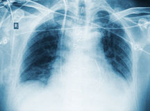 X-ray of patient after surgery with pneumonia.  Royalty Free Stock Photos