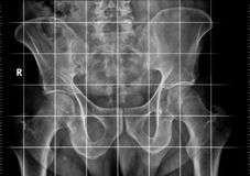 X-ray of a pelvic obliquity. Digital X-ray of a male pelvis using a grid for measurement of a pelvic obliquity caused by difference in leg length Stock Images