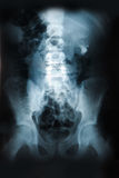 X-ray of the pelvis and spinal column.  Royalty Free Stock Photo
