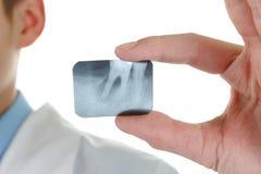 X-ray periodontitis tooth. Stock Photos