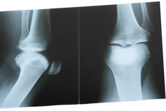 X-Ray Photo Stock Images