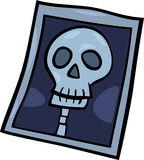 X-ray photo clip art cartoon illustration Royalty Free Stock Photography