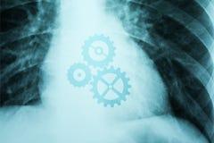 X-Ray Photo Of Human Heart royalty free illustration