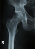 X-ray photo of human hip Royalty Free Stock Photography