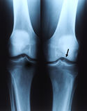 X ray photo of human knee Stock Photo