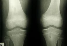 X-ray photo of human knee caps Royalty Free Stock Photos