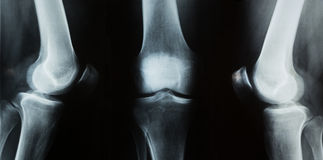 X-ray photo of a human knee Stock Images