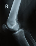 X-ray photo of a human knee Royalty Free Stock Photography