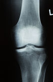 X-ray photo of a human knee Royalty Free Stock Images