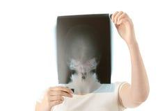 X-ray photo scan Stock Photos