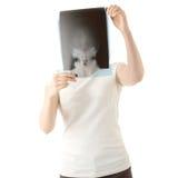X-ray photo scan Royalty Free Stock Photo