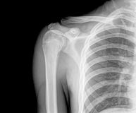 X-Ray. Photo of x-ray shoulder Stock Photos
