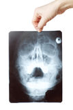An X-ray photograph Stock Image