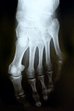 X-ray photograph of human foot stock photography