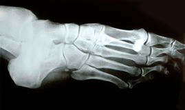 X-ray photograph of human foot.  stock images