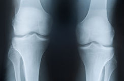 X-ray photograph of knees Stock Photos