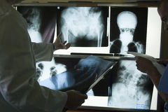 X-ray photos stock photos