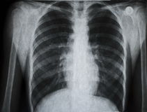 X-ray Picture Royalty Free Stock Photo