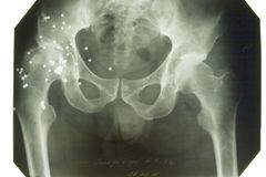 X-ray picture stock image
