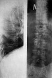 X-ray Picture Royalty Free Stock Photography
