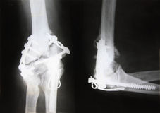 X-ray picture Stock Images