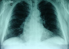 X-ray picture of the chest Stock Photos