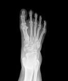 X-ray. Picture of foot stock images