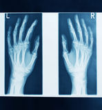 X-ray picture hands Royalty Free Stock Photo