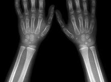 X-ray picture of hands royalty free stock photography