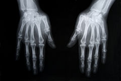 X-ray picture of human hands Stock Photo