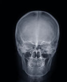 X-ray picture:human head Royalty Free Stock Image