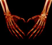 X-ray picture - Human palms. Folded in a heart shape stock image