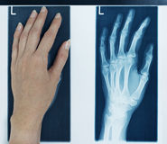 X-ray picture left hand Stock Images