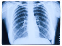 X-ray picture of lungs. Blue X-ray picture of lungs Stock Photo