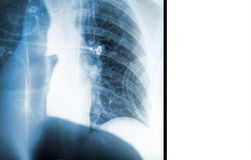 X-ray picture of lungs and a silhouette of a doctor. Stock Photography