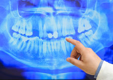 X-ray. Picture of male doctor or dentist looking at x-ray Royalty Free Stock Image