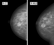 X-ray picture Mammography. Mastopathy. Radiography of mammary glands. pathology Stock Image