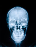 X-ray picture of skull Stock Photo