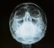 X-ray picture of the skull Stock Photos