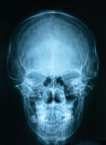 X-ray picture of the skull Royalty Free Stock Image