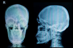 X-ray picture of the skull injury Royalty Free Stock Image
