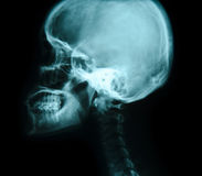 X-ray picture of the skull. Royalty Free Stock Photography