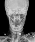 X-ray. Picture of the skull,open mouth Royalty Free Stock Photos