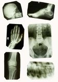 X-ray Pictures Royalty Free Stock Photos