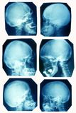 X-ray pictures Stock Image