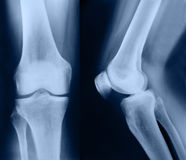 X-ray pictures Stock Images