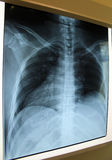 X ray plate of lungs and column Stock Images